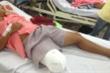 Làm rõ vụ bác sỹ chẩn đoán nhầm khiến nam thanh niên bị cưa chân ở TP.HCM