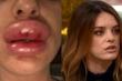 Tiêm botox tại nhà, đôi môi của cô gái trẻ sưng gấp 4 lần bình thường