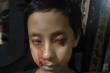 Bệnh lạ khiến bé gái 8 tuổi 'khóc' ra máu