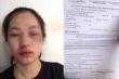 CSGT bị tố vụt gậy vào mặt người phụ nữ đi xe máy: Công an Tuyên Quang lên tiếng