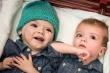 Sau phẫu thuật tách rời, cặp song sinh liền đầu ở Mỹ giờ ra sao?