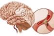 Dấu hiệu nhận biết bệnh tai biến mạch máu não