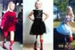 Bé gái cụt 2 chân biểu diễn thời trang
