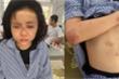 Cô gái bị kẻ cuồng yêu đánh dã man: Công bố kết luận giám định thương tích