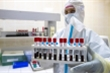 Nga dự định tiêm vaccine hàng loạt phòng COVID-19 vào mùa thu