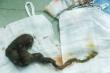 Bé 6 tuổi ở Đồng Tháp mắc hội chứng hiếm gặp chỉ thích ăn tóc