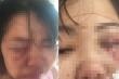 Đòi chia tay, vợ bị chồng đánh thâm tím mặt