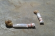 Ăn nhầm kẹo mút bả chó, bé gái 4 tuổi chết thương tâm