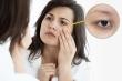 Quầng thâm mắt là dấu hiệu của những bệnh nguy hiểm nào?