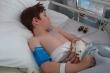 Xót xa bé 6 tuổi bị bại não, liệt mặt chỉ vì một vết cắn nhỏ