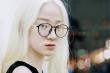 Cô gái bạch tạng Hà Nội bỗng nổi tiếng khắp cộng đồng mạng