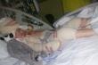 Bé gái 5 tuổi bị bỏng toàn thân kiên cường trải qua hơn 100 lần phẫu thuật
