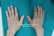 Nối thành công ngón tay cái đứt rời cho người đàn ông 67 tuổi