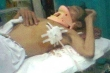 Một người dân bị phó công an xã đánh gãy 4 xương sườn