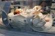 Hành trình 88 ngày kỳ diệu của bé tí hon 700g sinh non