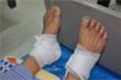 Chườm nóng bằng lá ngải cứu giúp giảm chứng tê bì chân, người đàn ông 60 tuổi bỏng nặng
