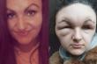 Dị ứng thuốc nhuộm tóc, cô gái 18 tuổi trông như 'quái vật'