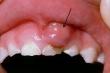 Dấu hiệu ung thư khoang miệng dễ bị bỏ qua