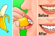 10 mẹo vặt 'thần thánh' từ vỏ chuối rất ít người biết