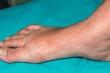 Phát ban ở chân có thể là dấu hiệu cảnh báo cơn đau tim