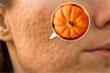 7 thực phẩm làm mờ sẹo mụn nhanh và an toàn