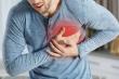 Những dấu hiệu nhận biết đột quỵ và cách phòng ngừa