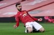 Arsenal vs Man Utd: HLV Solskjaer khích lệ Bruno Fernandes