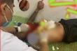 Hỗn chiến ở quán karoke mở 'chui' mùa COVID-19, nhiều người bị chém trọng thương