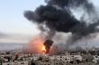 Israel không kích phá huỷ phòng xét nghiệm COVID-19 ở Gaza