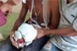 Laptop phát nổ, 3 học sinh ở Hà Tĩnh bị thương